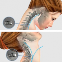 Range of motion associated with Mobi-C Cervical Disc Replacement implant